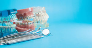Ortodonzia adulti